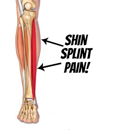 shin.splint.pain
